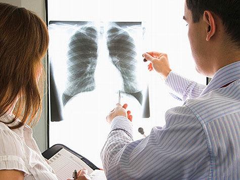 туберкулезом